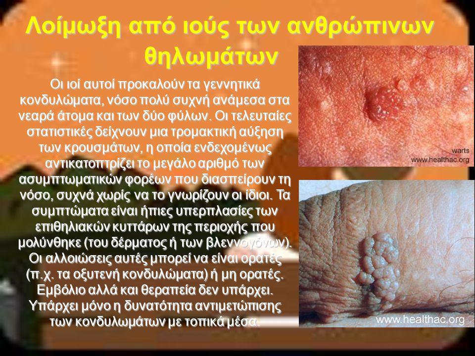 Λοίμωξη από ιούς των ανθρώπινων θηλωμάτων