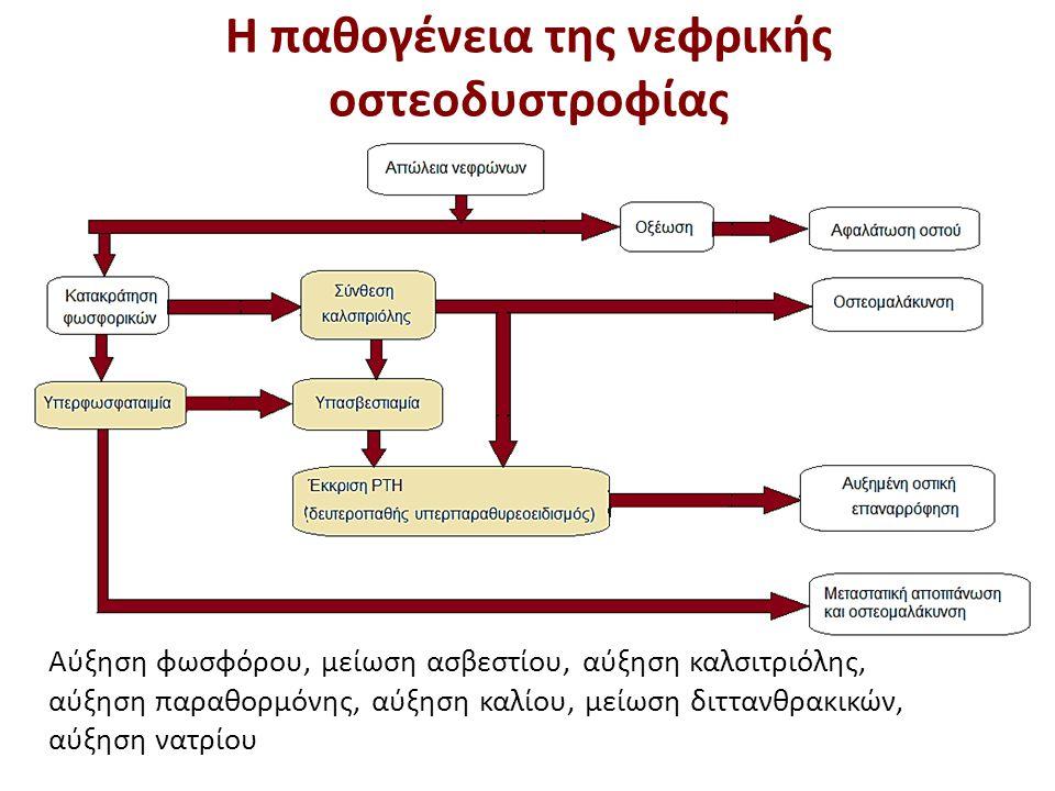 Η υποασβεστιαμία στη νεφροπάθεια τελικού σταδίου (3 από 3)