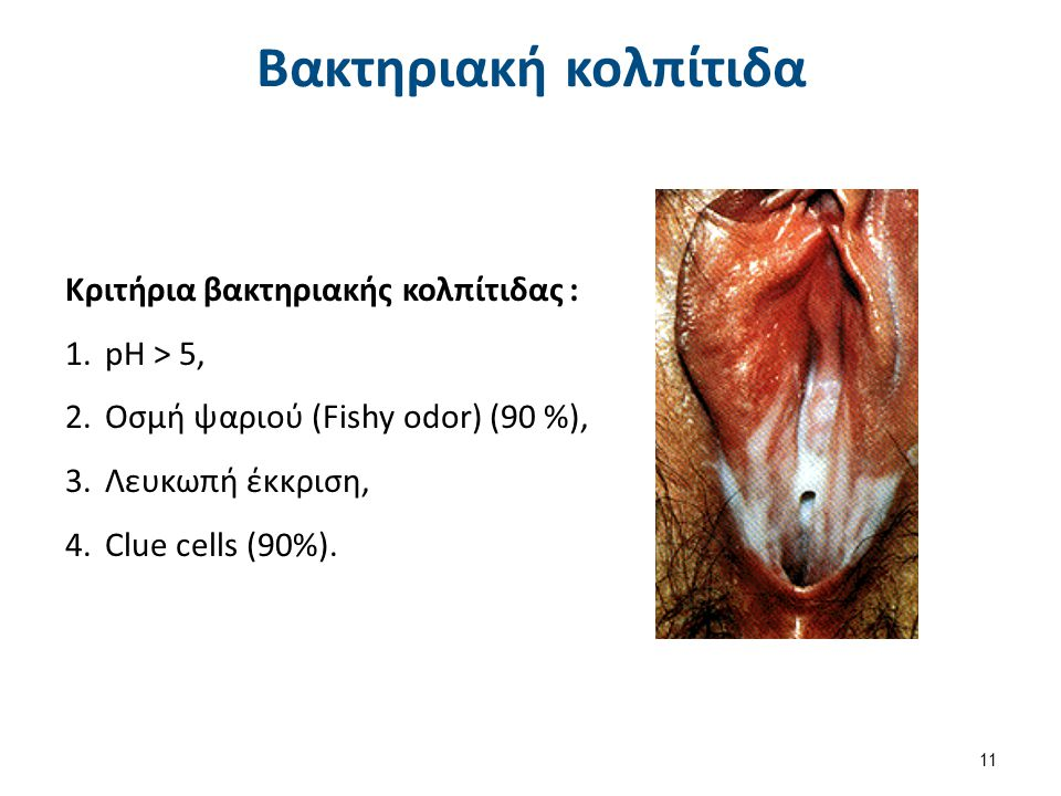 Kριτήρια Amsel για τη διάγνωση της βακτηριακής κολπίτιδας