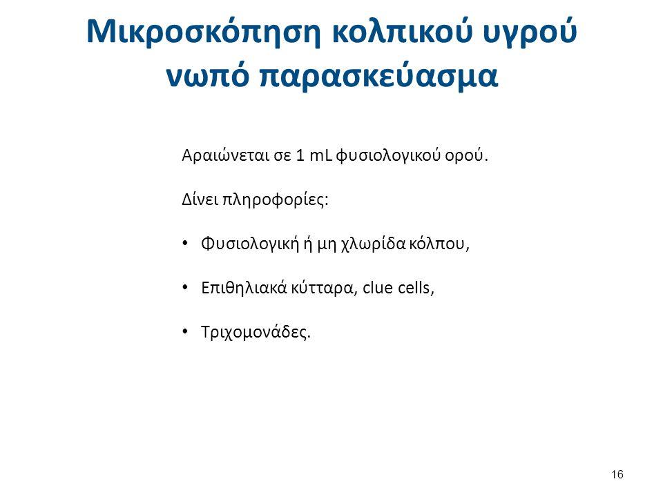 Mικροσκόπηση κολπικού υγρού παρασκεύασμα με KOH% Τεστ αμινών