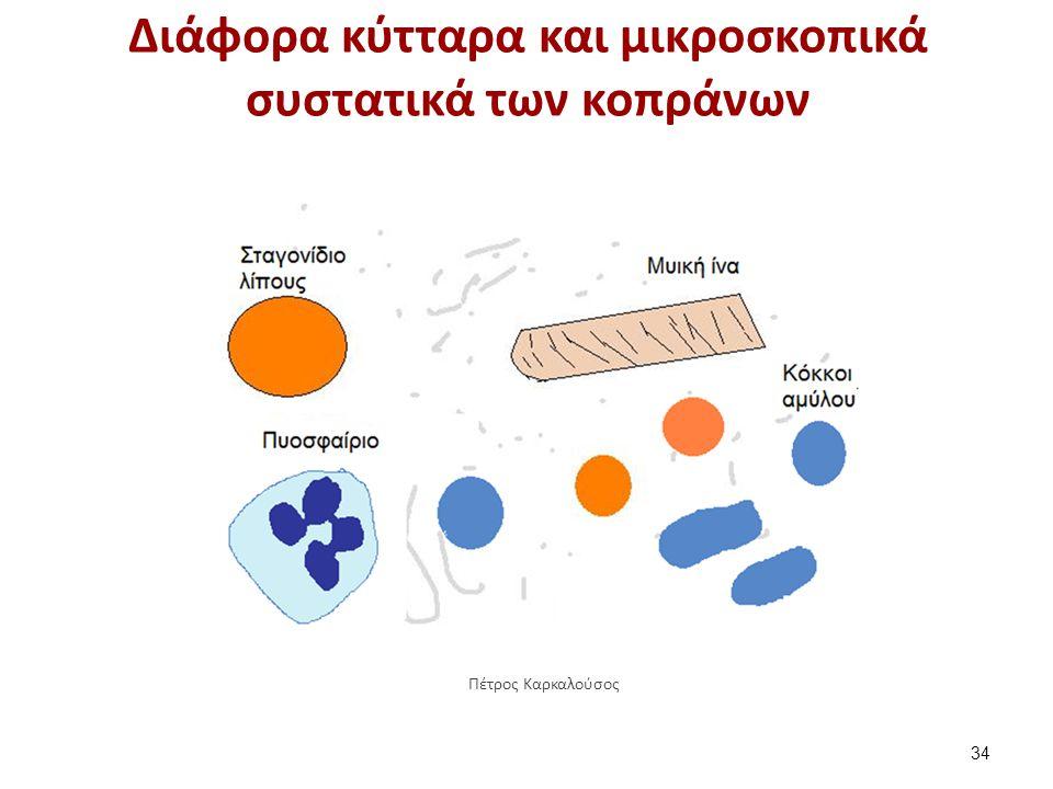 Υπολείμματα μυϊκών ινών στα κόπρανα