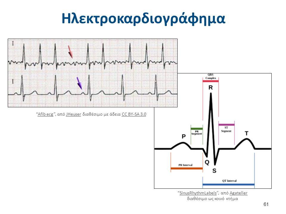 Illu artery , από Arcadian διαθέσιμο ως κοινό κτήμα