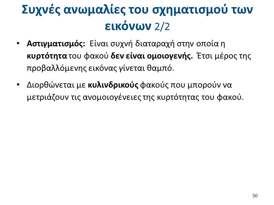 Ανωμαλίες της όρασης 1/2 Myopia Refractive errors Hyperopia