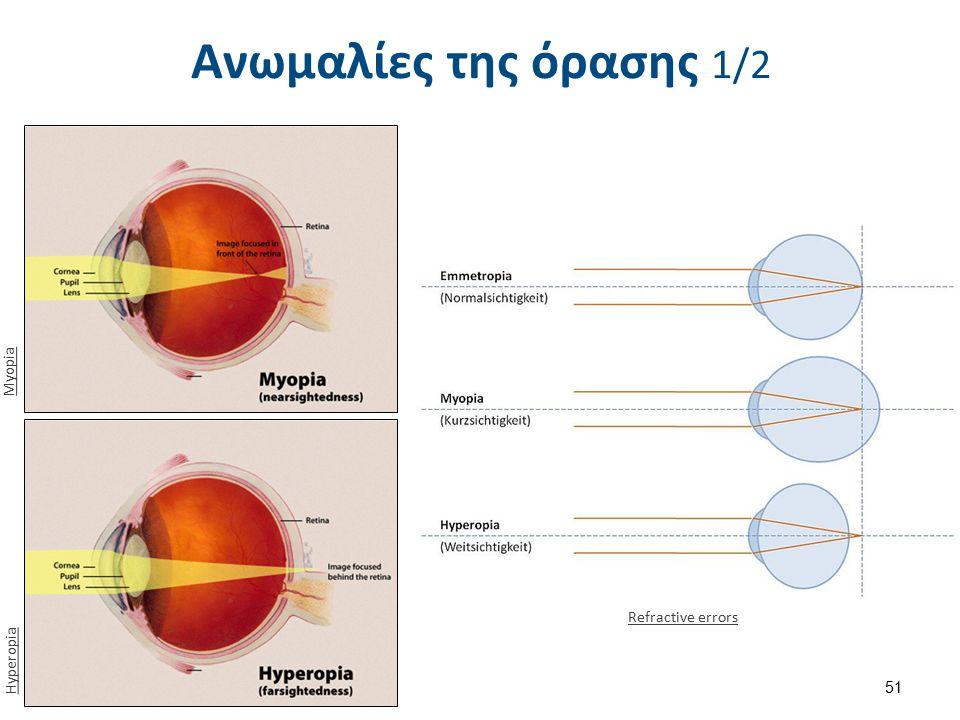 Ανωμαλίες της όρασης 2/2 zuniv.net