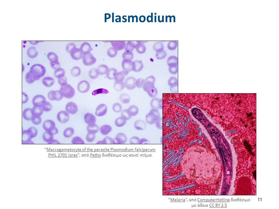 Μαλάρια Plasmodium lifecycle PHIL 3405 lores , από Patho διαθέσιμο ως κοινό κτήμα