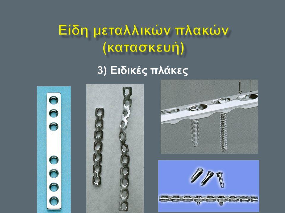 Είδη μεταλλικών πλακών (κατασκευή)