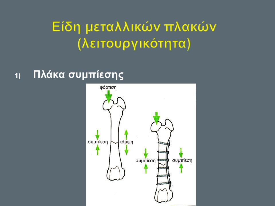 Είδη μεταλλικών πλακών (λειτουργικότητα)