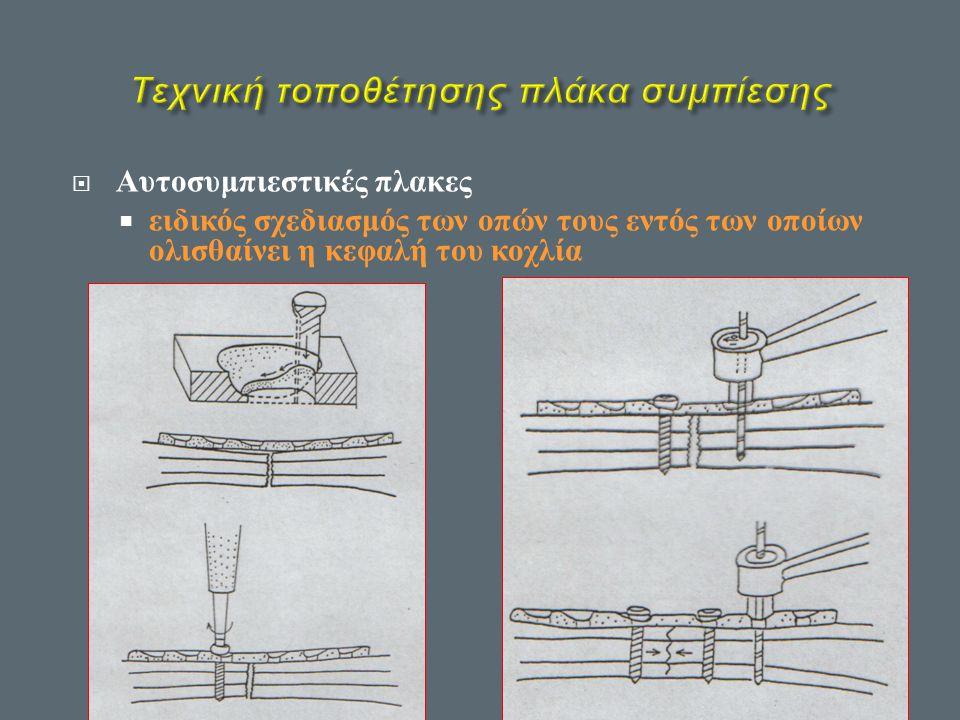 Τεχνική τοποθέτησης πλάκα συμπίεσης
