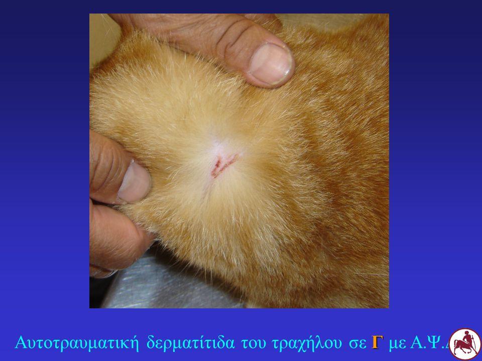 Αυτοτραυματική δερματίτιδα του τραχήλου σε Γ με Α.Ψ.Δ.