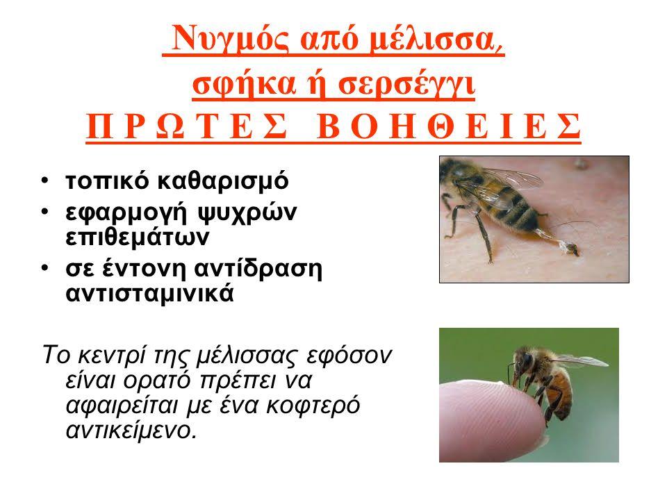 Νυγμός από μέλισσα, σφήκα ή σερσέγγι Π Ρ Ω Τ Ε Σ Β Ο Η Θ Ε Ι Ε Σ