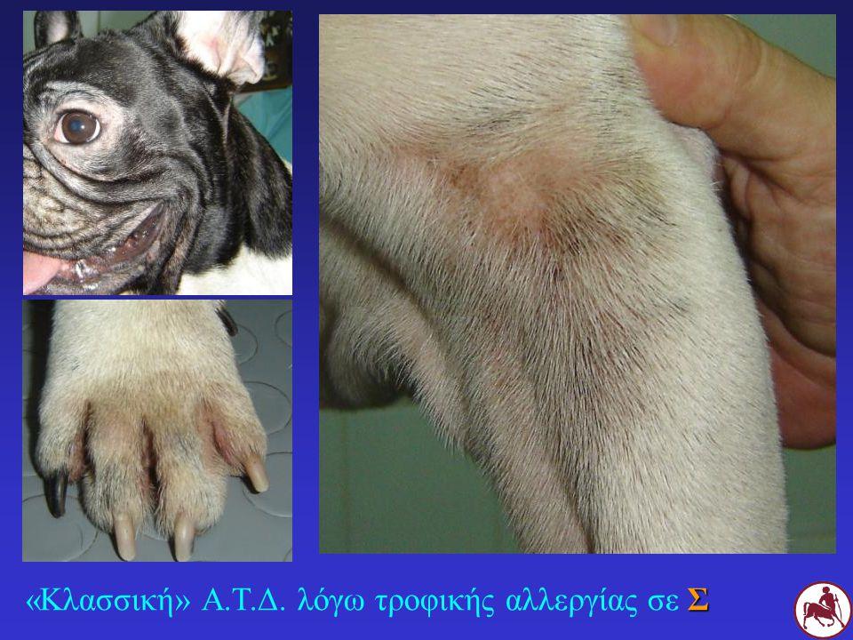 «Κλασσική» Α.Τ.Δ. λόγω τροφικής αλλεργίας σε Σ