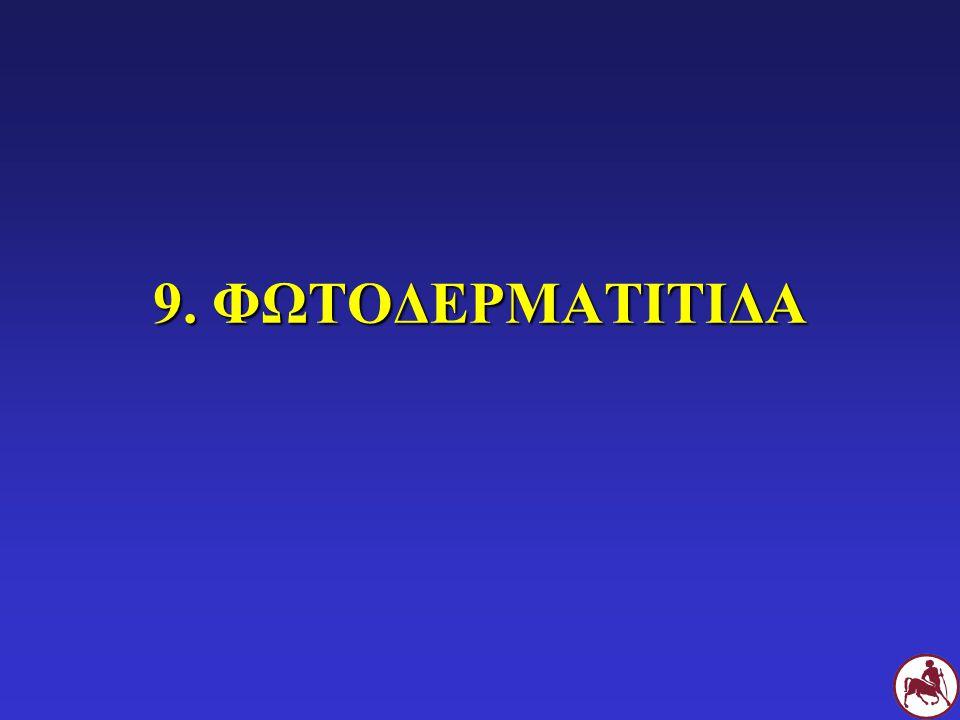9. ΦΩΤΟΔΕΡΜΑΤΙΤΙΔΑ