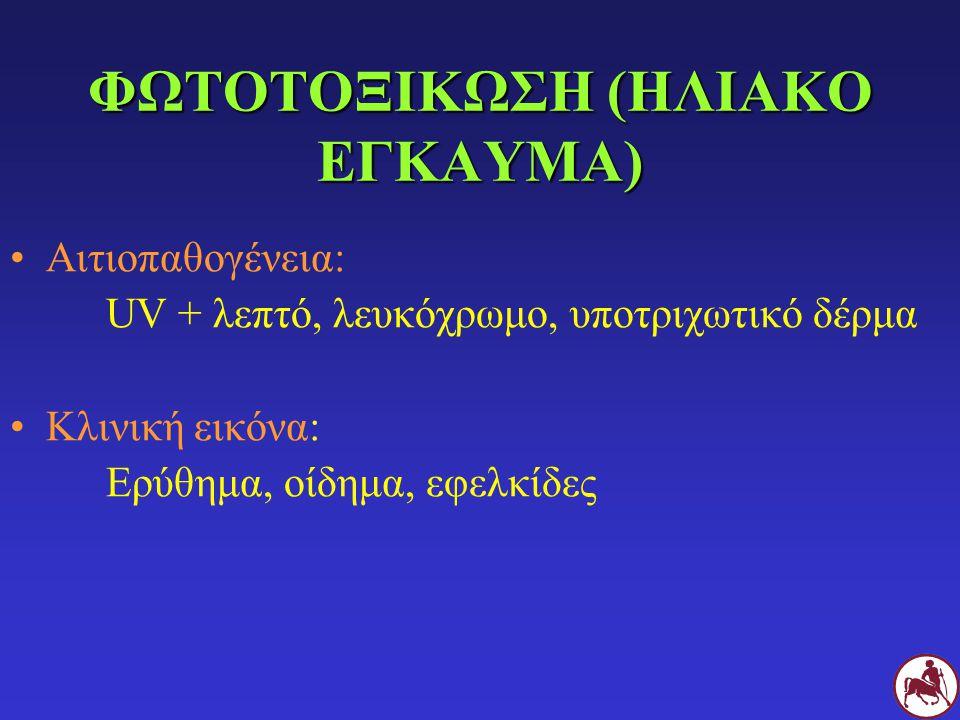 ΦΩΤΟΤΟΞΙΚΩΣΗ (ΗΛΙΑΚΟ ΕΓΚΑΥΜΑ)
