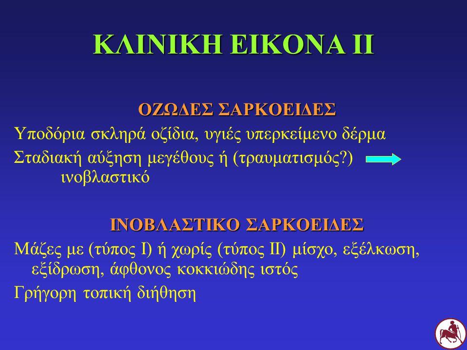 ΙΝΟΒΛΑΣΤΙΚΟ ΣΑΡΚΟΕΙΔΕΣ