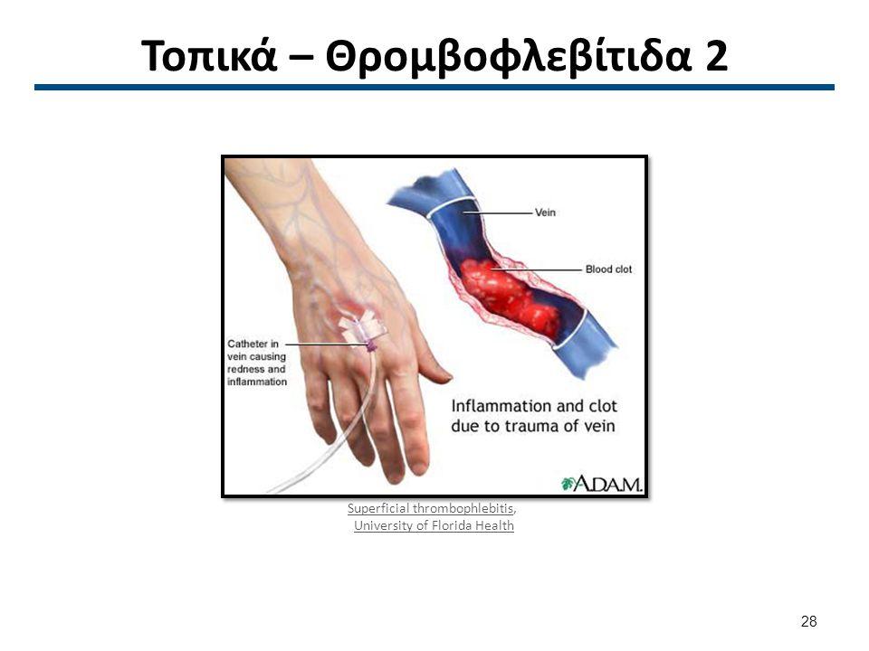 Τοπικά – Θρομβοφλεβίτιδα 3
