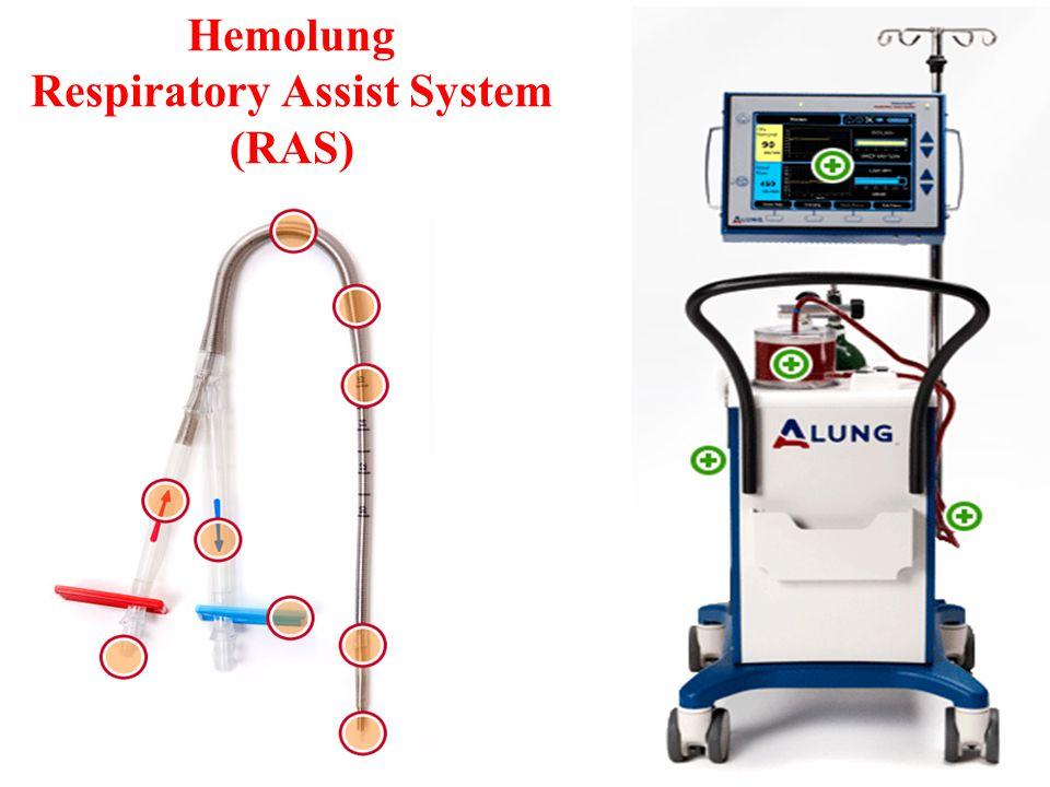 Hemolung Respiratory Assist System (RAS)