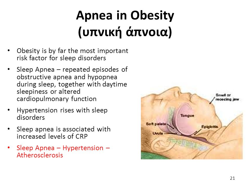 Apnea in Obesity (υπνική άπνοια)