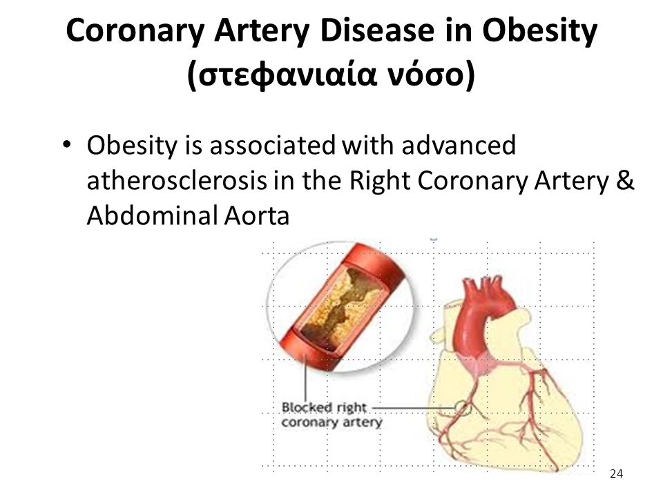 Coronary Artery Disease in Obesity (στεφανιαία νόσο)