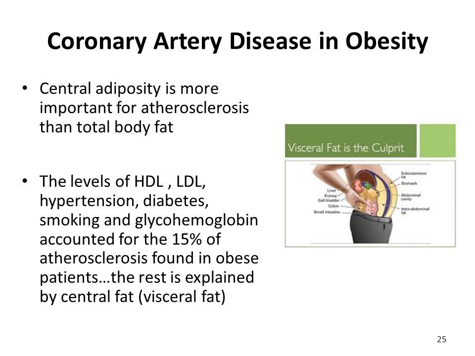 Coronary Artery Disease in Obesity