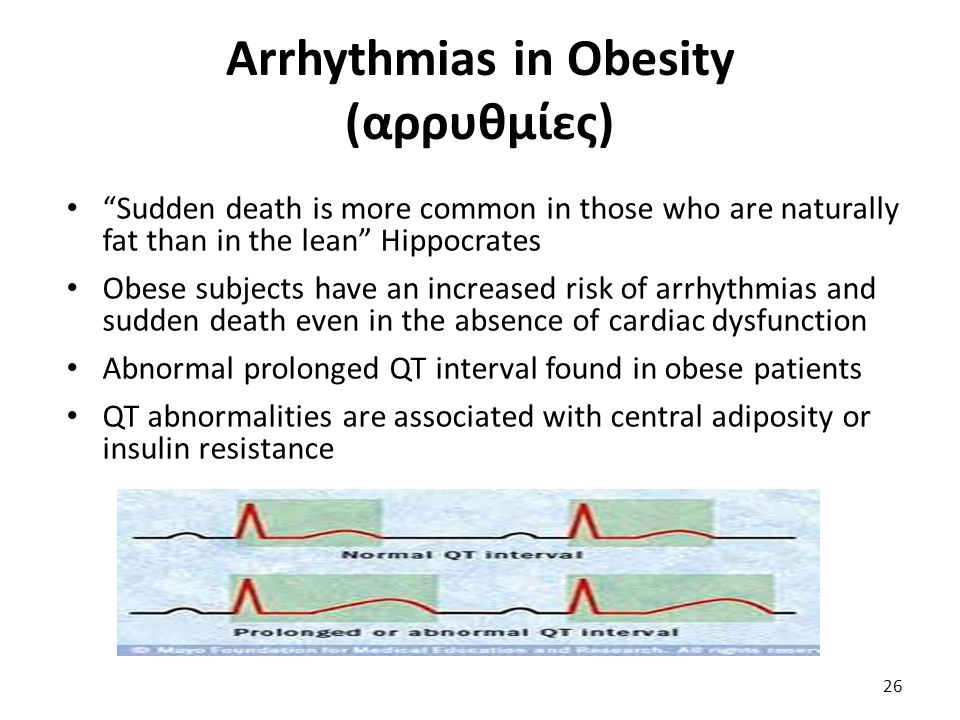 Arrhythmias in Obesity (αρρυθμίες)