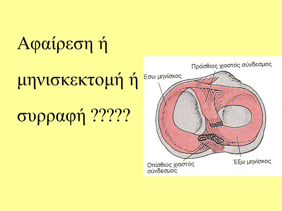 Αφαίρεση ή μηνισκεκτομή ή συρραφή