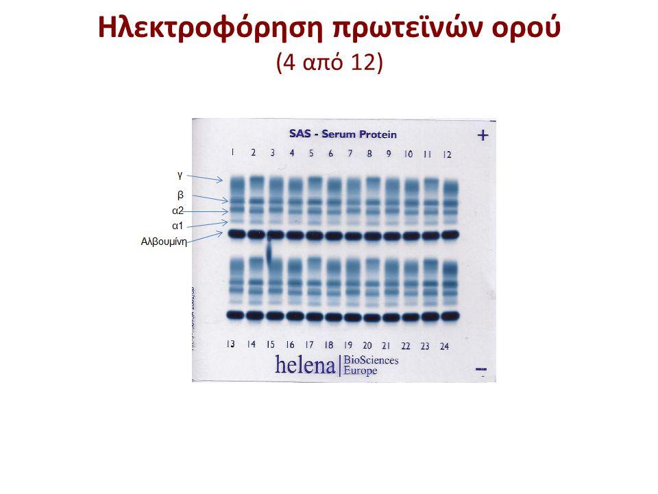 Ηλεκτροφόρηση πρωτεϊνών ορού (5 από 12)