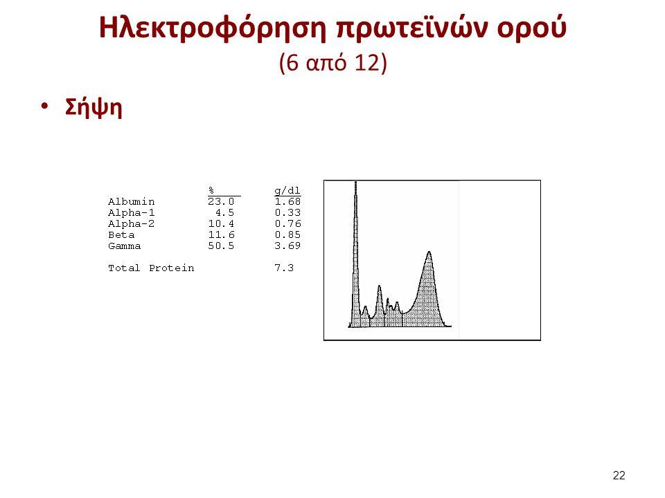 Ηλεκτροφόρηση πρωτεϊνών ορού (7 από 12)