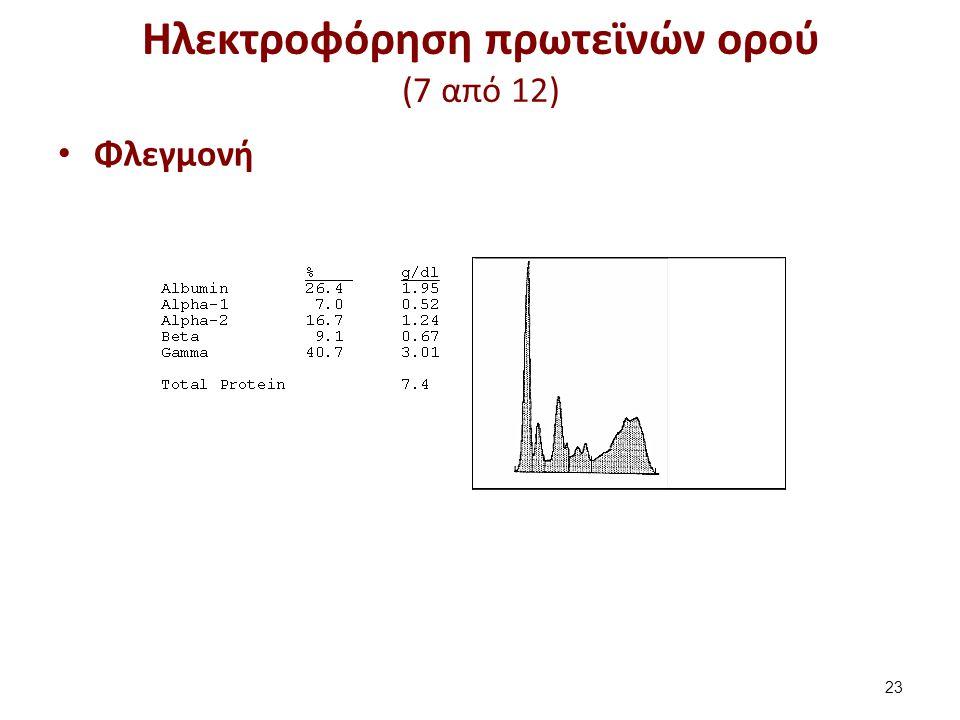 Ηλεκτροφόρηση πρωτεϊνών ορού (8 από 12)
