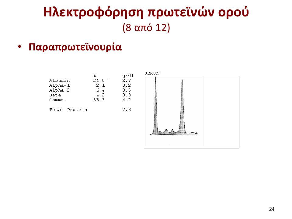 Ηλεκτροφόρηση πρωτεϊνών ορού (9 από 12)