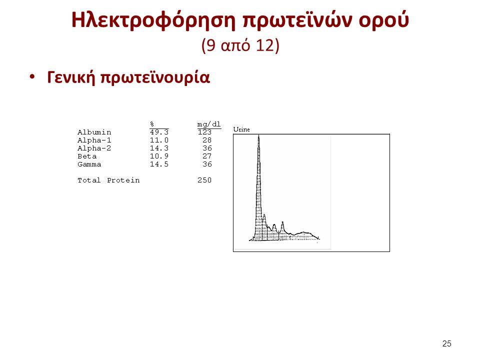Ηλεκτροφόρηση πρωτεϊνών ορού (10 από 12)