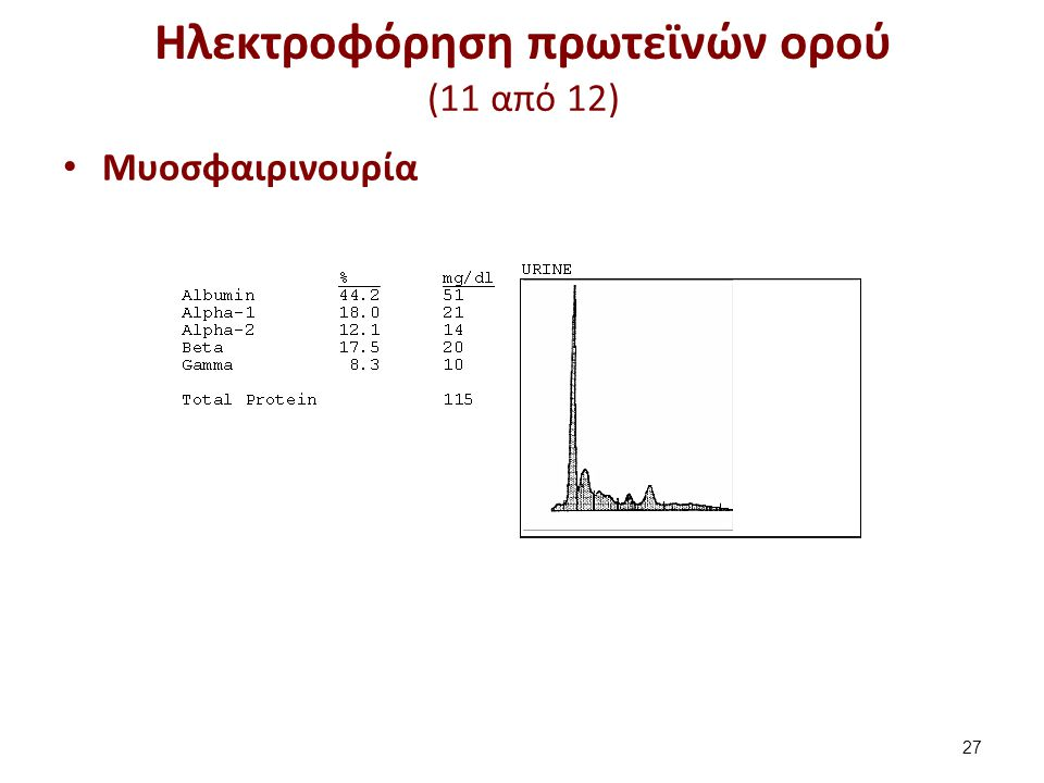 Ηλεκτροφόρηση πρωτεϊνών ορού (12 από 12)