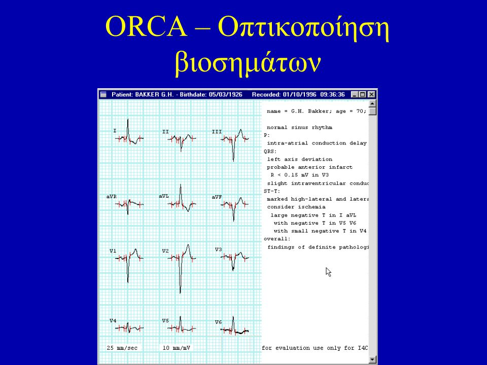 ORCA – Οπτικοποίηση βιοσημάτων