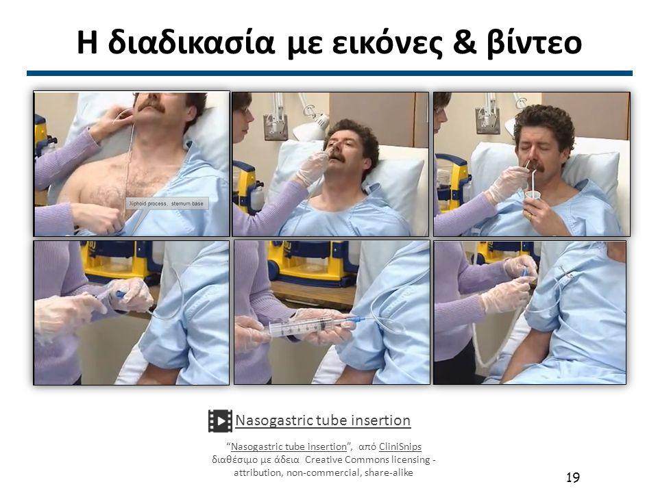 Ασθενείς με καθετήρα Ρινογαστρικός Γαστροστομία