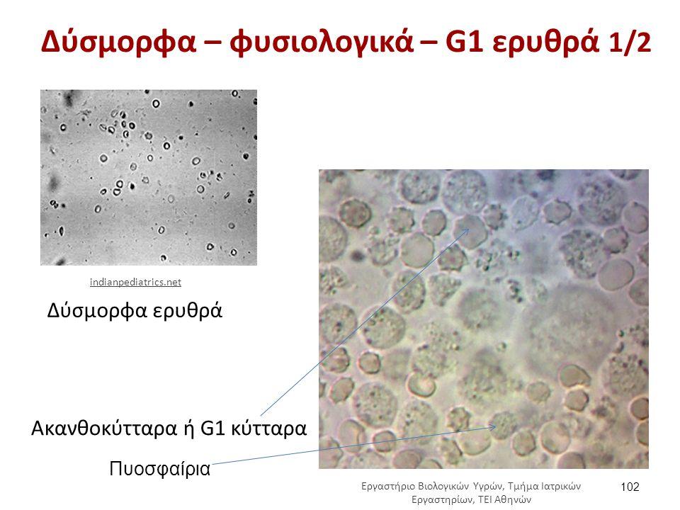 Δύσμορφα – φυσιολογικά – G1 ερυθρά 2/2