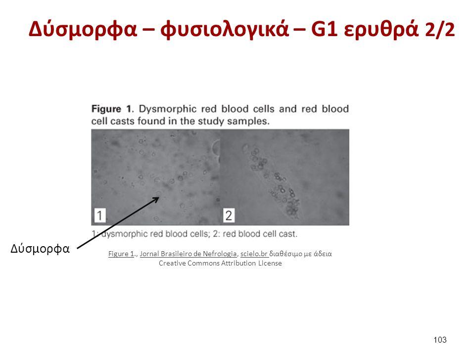 Ερυθρά και επιθηλιακά κύτταρα