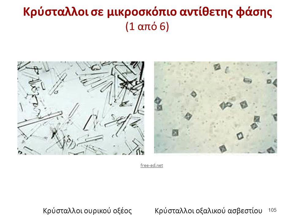 Κρύσταλλοι σε μικροσκόπιο αντίθετης φάσης (2 από 6)