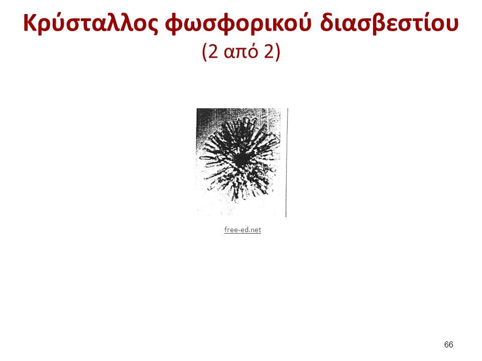 Κρύσταλλοι ουρικού αμμωνίου (1 από 2)