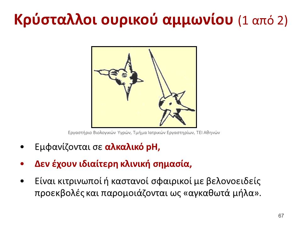 Κρύσταλλοι ουρικού αμμωνίου (2 από 2)