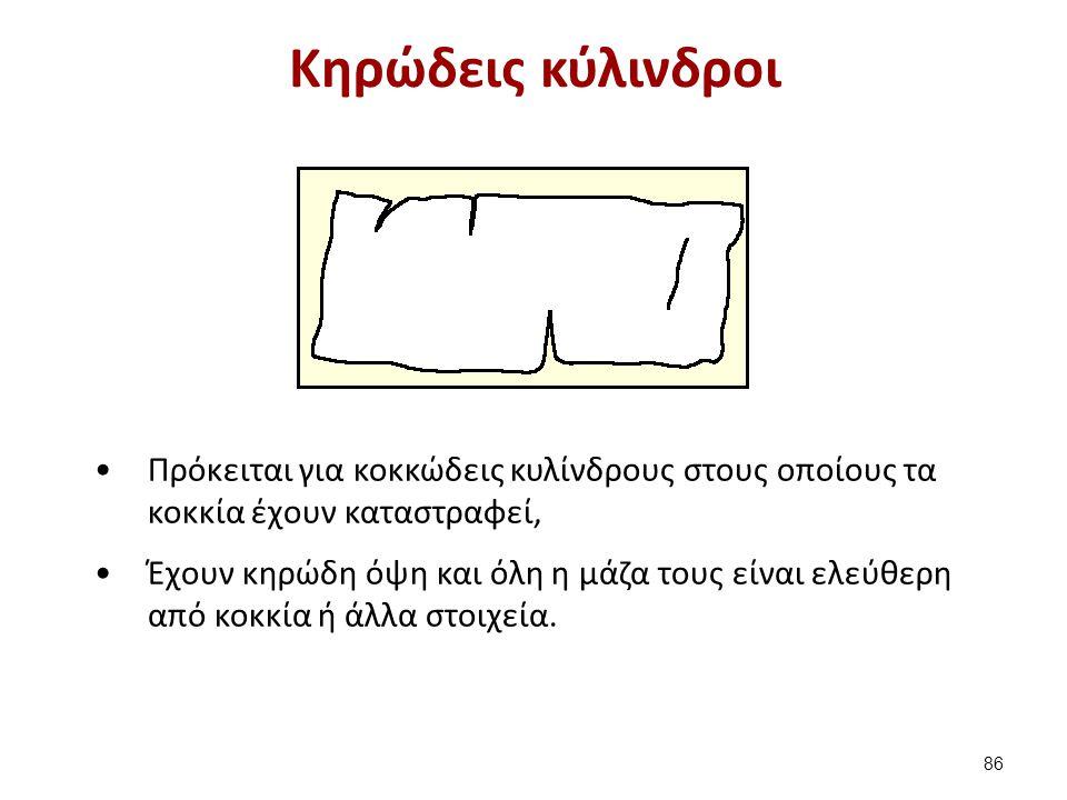 Κυρώδης κύλινδρος panji1102.blogspot.gr
