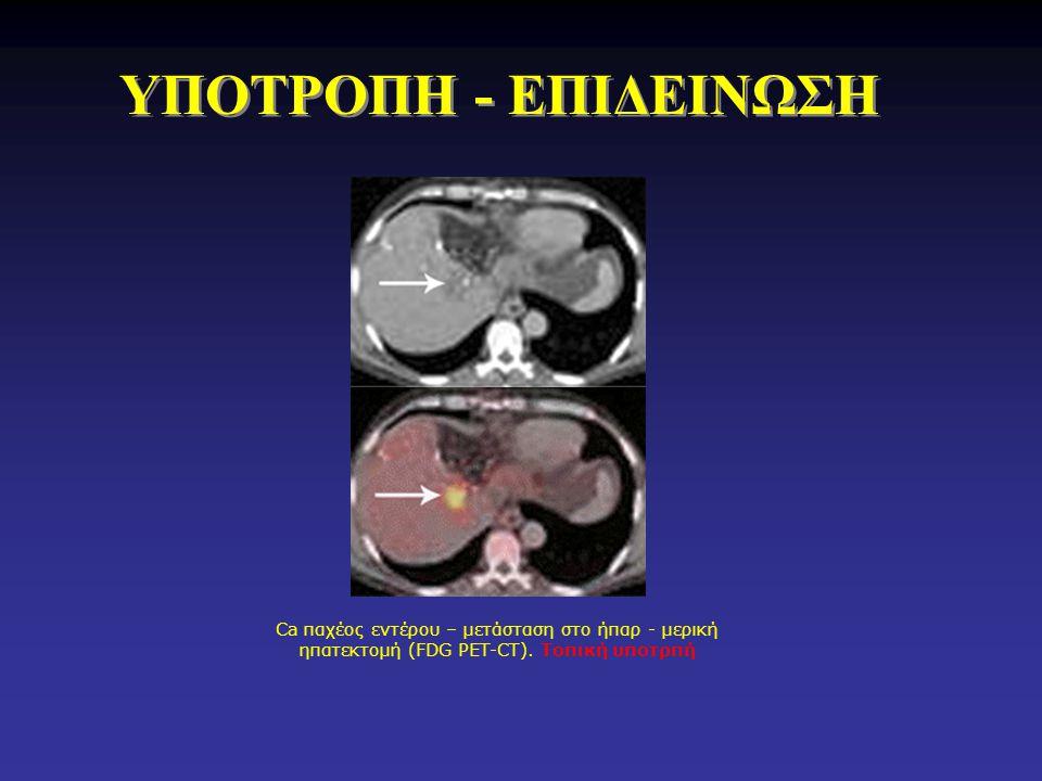 ΥΠΟΤΡΟΠΗ - ΕΠΙΔΕΙΝΩΣΗ Ca παχέος εντέρου – μετάσταση στο ήπαρ - μερική ηπατεκτομή (FDG PET-CT).