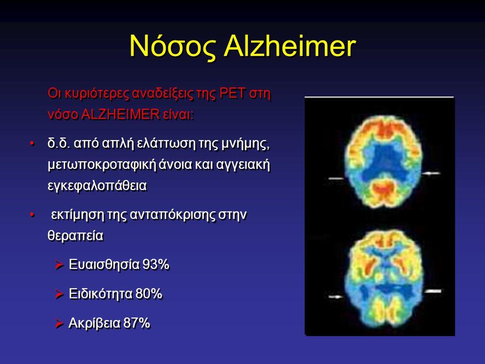Νόσος Alzheimer Οι κυριότερες αναδείξεις της PET στη νόσο ALZHEIMER είναι:
