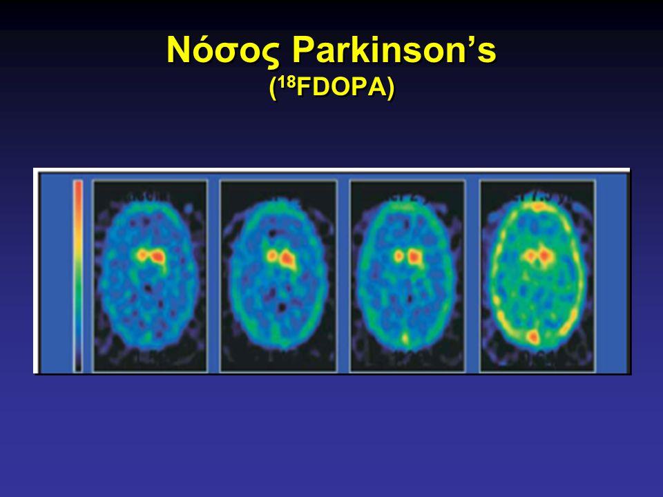 Νόσος Parkinson's (18FDOPA)