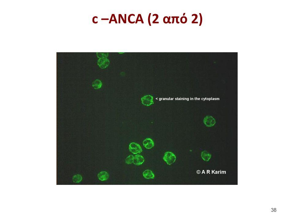 p –ANCA (1 από 2)