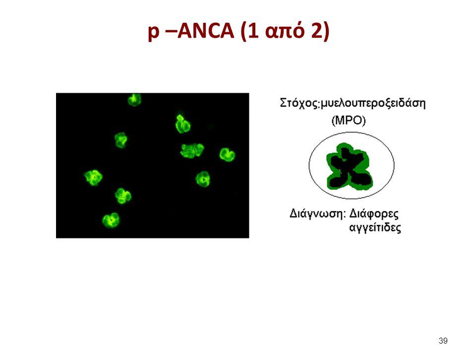 p –ANCA (2 από 2)