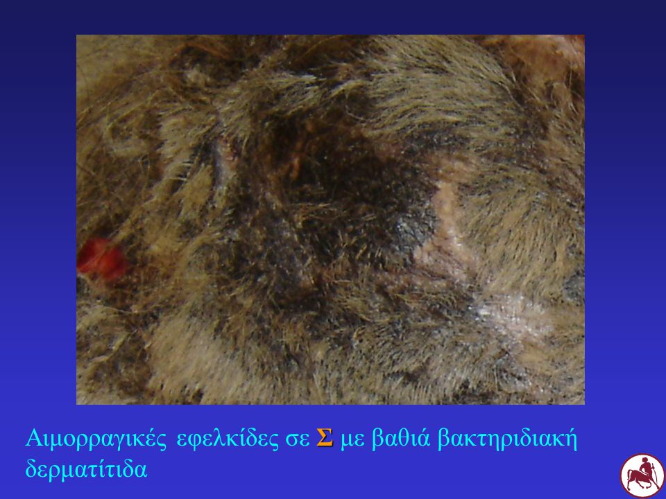 Αιμορραγικές εφελκίδες σε Σ με βαθιά βακτηριδιακή δερματίτιδα