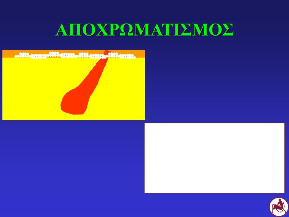 ΑΠΟΧΡΩΜΑΤΙΣΜΟΣ