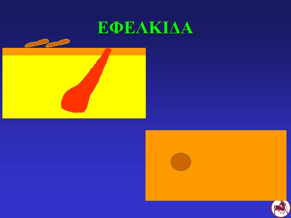 ΕΦΕΛΚΙΔΑ