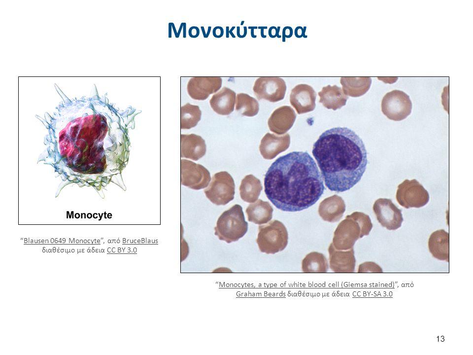 Εωσινόφιλα (κοκκιοκύτταρα)