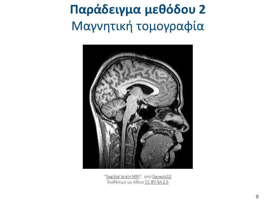 Παράδειγμα μεθόδου 3 Μελέτη νευρώνων και νευροδιαβιβαστών