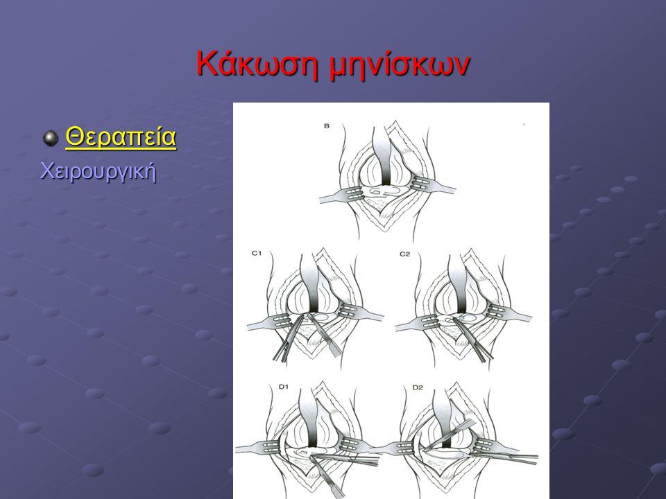 Κάκωση μηνίσκων Θεραπεία Χειρουργική